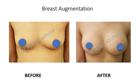 breast augmentation in Delhi