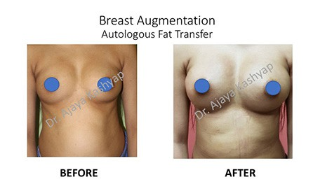 breast augmentation fat transfer in Delhi