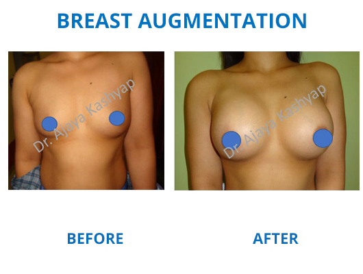 breast augmentation surgery india