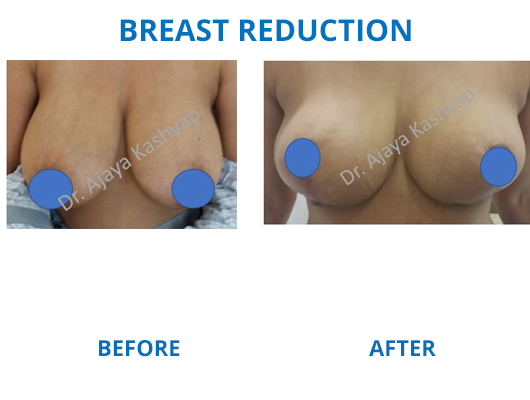 breast reduction surgery clinic