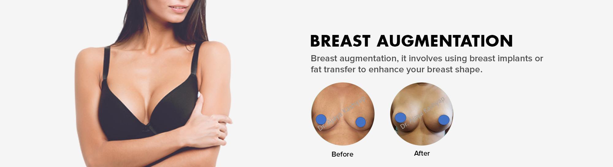 breast augmentation surgery in Delhi